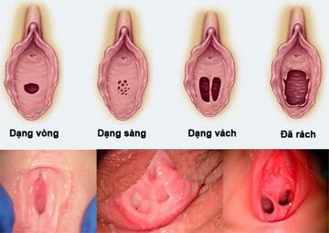 Màng trinh là gì? Cấu tạo và chức năng của màng trinh?