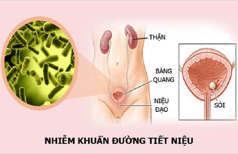 nhiem-khuan-tiet-nieu-1
