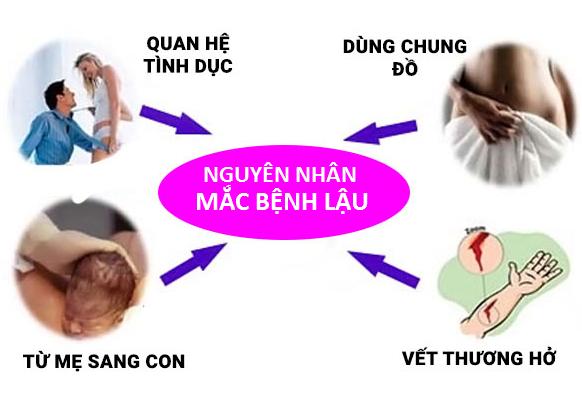 nguyen-nhan-mac-benh-lau