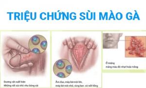 Các triệu chứng bệnh sùi mào gà giai đoạn đầu cần phải lưu ý